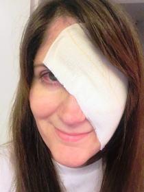 Sarah bandage